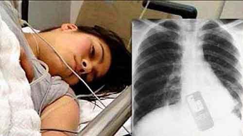 La radiografía evidencia que se había tragado su teléfono móvil